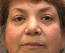 Psychiatrist who tried to defraud pensioner is jailed for five years
